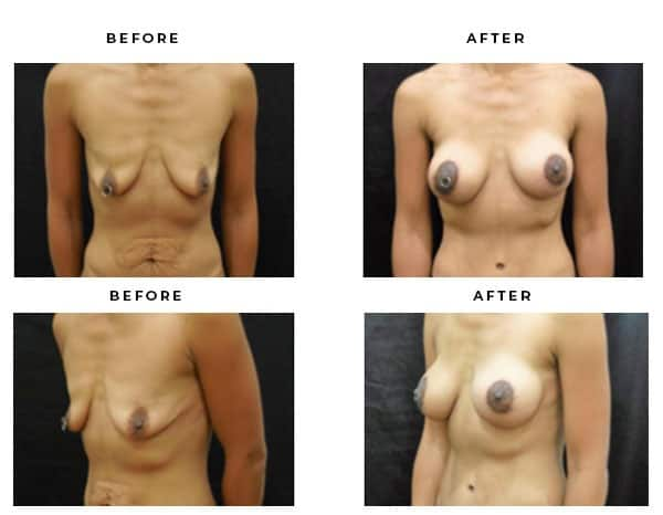 Before & After Photos- Mommy Makeover-Breast Lift, Tummy Tuck, Vertical breast lift - Dr. Della Bennett, MD. of Gemini Plastic Surgery in Los Angeles, Orange County, Inland Empire & San Bernadino. Case Study #4599
