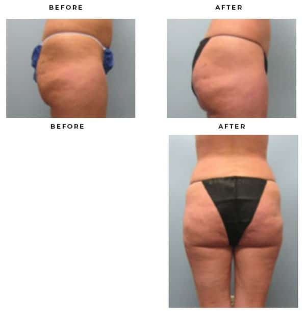Before & After Photos- Brazilian Buttock Lift, Butt Lift- Dr. Della Bennett, MD. of Gemini Plastic Surgery in Rancho Cucamonga. Case Study #4287