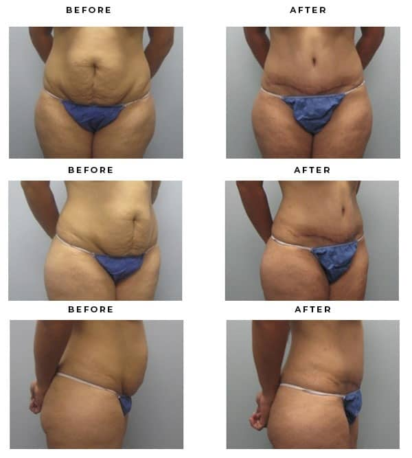 Before & After Pics- Mommy Makeover- Lift Breasts & Tighten Tummy. Dr. Della Bennett, MD. of Gemini Plastic Surgery in Rancho Cucamonga. Top Board Certified Plastic Surgeon. Case Study #2293