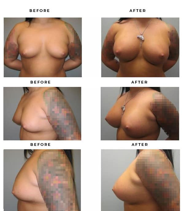 Before & After Photos- Breast Implants- Dr. Della Bennett, MD. of Gemini Plastic Surgery in Los Angeles, Orange County, Inland Empire & San Bernadino. Case Study #3112