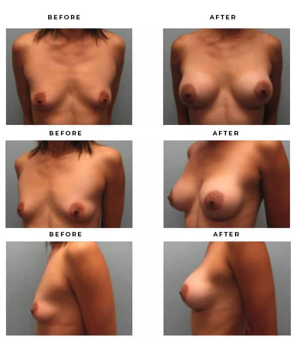 Before & After Images- Breast Augmentation - Dr. Della Bennett, MD. of Gemini Plastic Surgery in Riverside County. Top Board Certified Plastic Surgeon in Southern California. Case Study #4114
