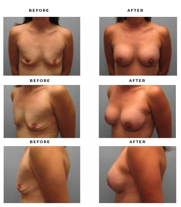 Before & After Images- Boob Job - Dr. Della Bennett, MD. of Gemini Plastic Surgery in Riverside County. Top Board Certified Plastic Surgeon in Southern California. Case Study #4126