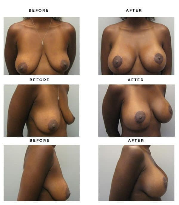 Before & After Pics- Breast Augmentation & Lift Procedures. Beautiful, natural results. - Chief of Plastic Surgery- Dr. Della Bennett, MD. of Gemini Plastic Surgery - Highly Recommended Breast Augmentation Surgeon-Best Board Certified Plastic Surgeon in Los Angeles, Orange County, Inland Empire & Riverside County, California. Case Study #2186.