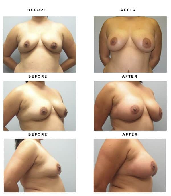 Before & After Pics- Breast Augmentation & Lift Procedures. Beautiful, natural results. - Chief of Plastic Surgery- Dr. Della Bennett, MD. of Gemini Plastic Surgery - Best Breast Augmentation Plastic Surgeon in the United States. Case Study #2192.