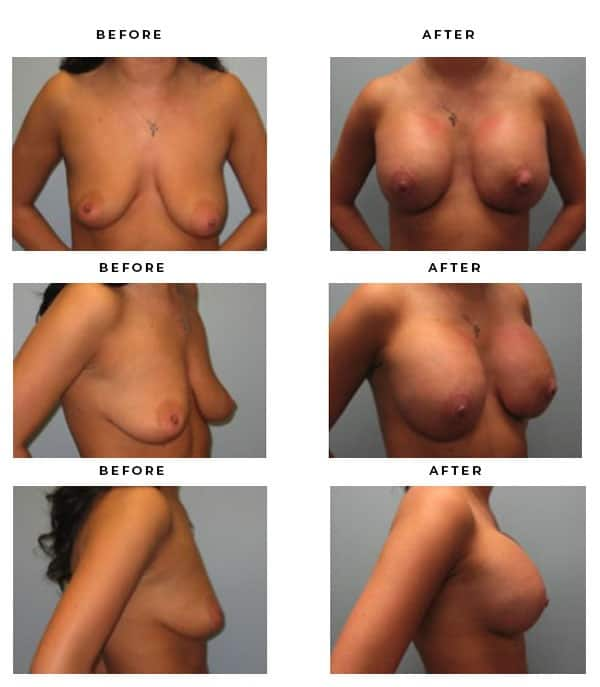 Before & After Galleries - Breast Implant and Lift Surgery. Scars, End Results, Recovery Gallery - Chief of Plastic Surgery- Dr. Della Bennett, MD. of Gemini Plastic Surgery - See Results for Breast Lift Surgeon- Best Board Certified Plastic Surgeon in LA, OC, IE, Rancho Cucamonga, Ca. Case Study #4216
