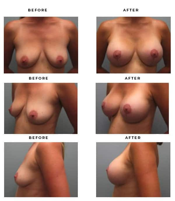 Before & After Photos - Breast Augmentation and Lift Surgery Galleries. Scars, End Results, Recovery Results - Best Chief of Plastic Surgery- Dr. Della Bennett, MD. of Gemini Plastic Surgery - View Results for Breast Lift Surgeon- Best Board Certified Plastic Surgeon in Southern California. Case Study #4240