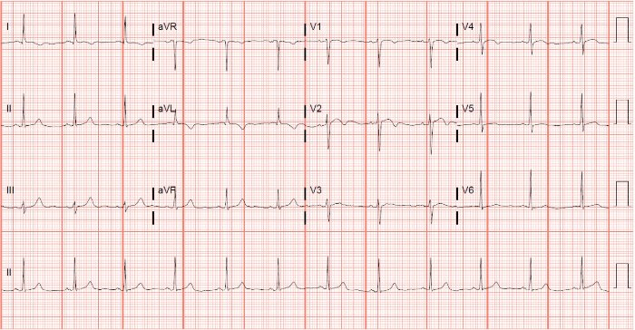 Clinical Challenges - ECG 2-Day History of Chest Pain