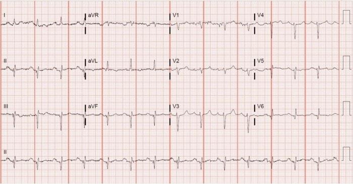 ECG Case of Left axis deviation (LAD)