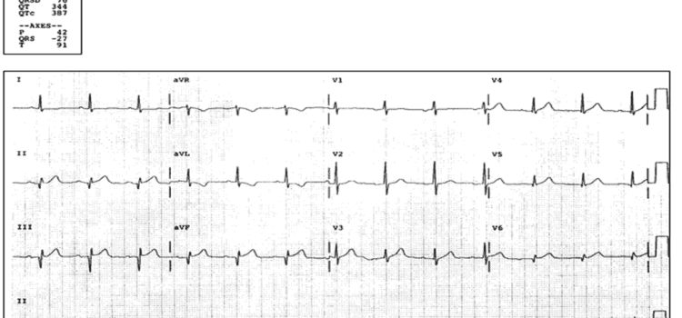 A 65-Year-Old Man with Epigastric Pain, Dyspnea, and a 'Clammy' Feeling
