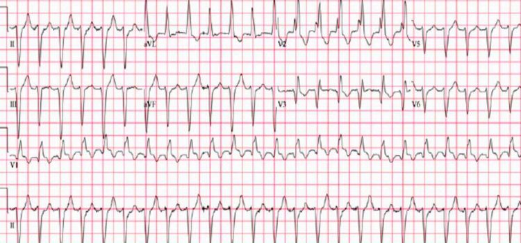 A 96-Year-Old Male with Palpitations and a History of CAD