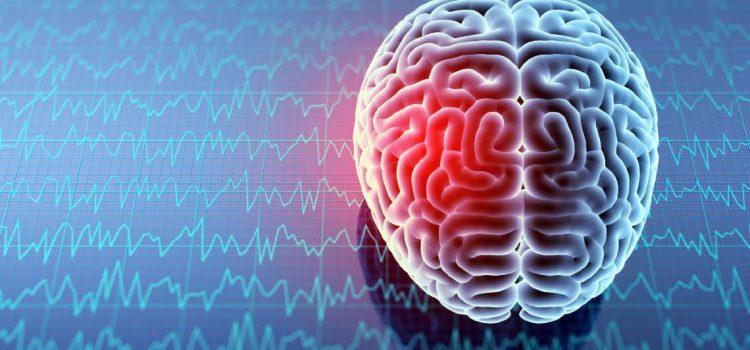 Managing Concussions in Acute Care