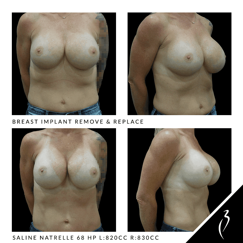 Remove & Replace Breast Implants #5045 in Rancho Cucamonga