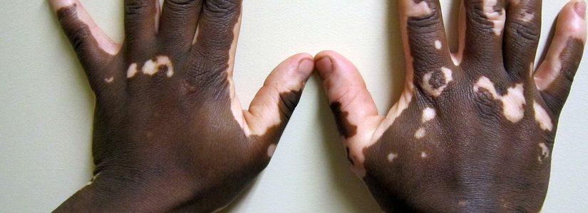 Vitiligo : Homeopathie kan wellicht voor uw wat betekenen.