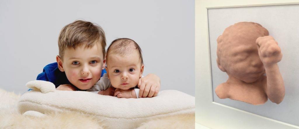 BabySliceO, Convert ultrasound data to a 3D Baby Model!