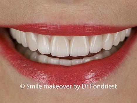 Raising the gum line to fix a gummy smile