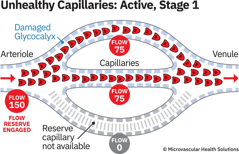 cap-unhealthy-active-stage1-MHS-1500