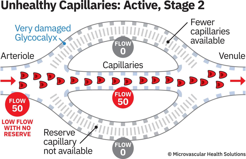 cap-unhealthy-active-stage2-MHS-1500