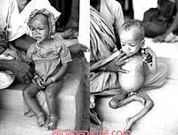 Child of Kwashiorkor and Marasmus