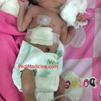 congenital birth defect