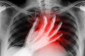 هر درد قفسه سینه ای به کرونا مرتبط نیست!