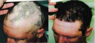 stem cell hair growth before and after photos