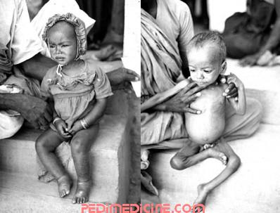 Malnourished Child of Kwashiorkor and Marasmus