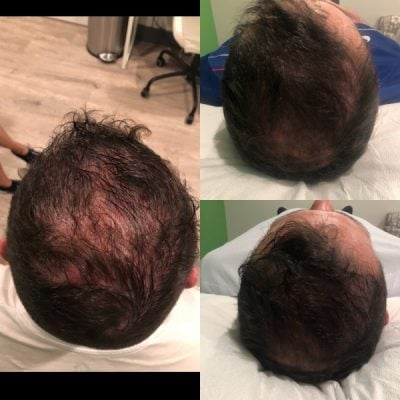 PRP Hair Growth Injection Vancouver