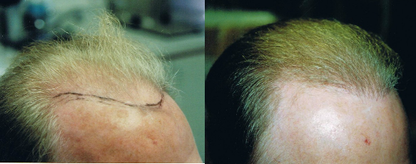 neograft hair transplant before and after results