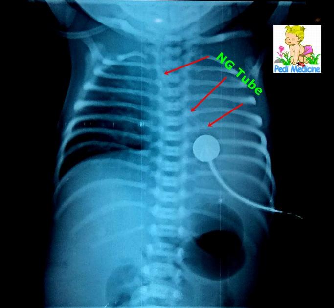 congenital birth defect chest xray