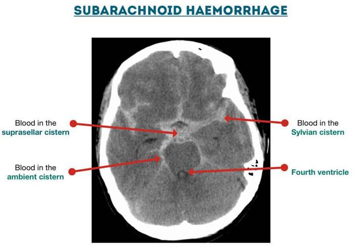 Subarachnoid Haemorrhage cisterns