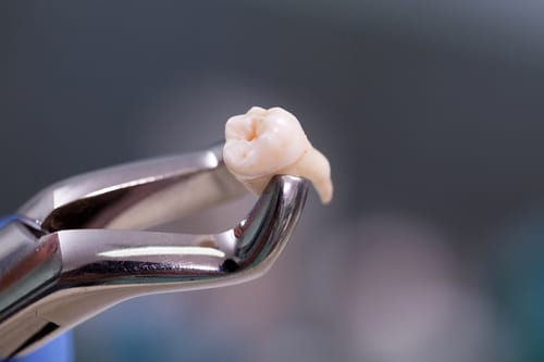 The Wisdom Of Wisdom Tooth Extraction