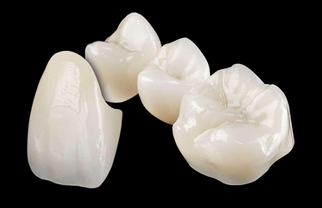 Dental Crowns & Dental Bridges