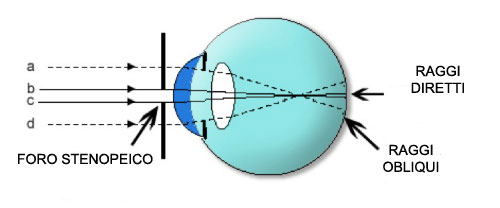 Come funzionano gli occhiali a fori stenopeici con l'occhio umano