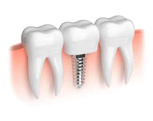 cutaway image of a dental implant