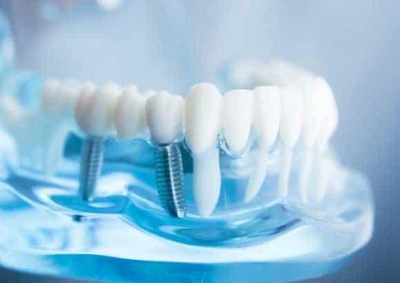 Implants Dentistry
