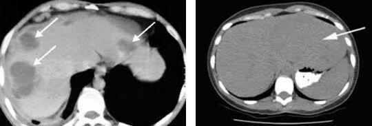 karaciğerde hipodens lezyonlar görülmesi