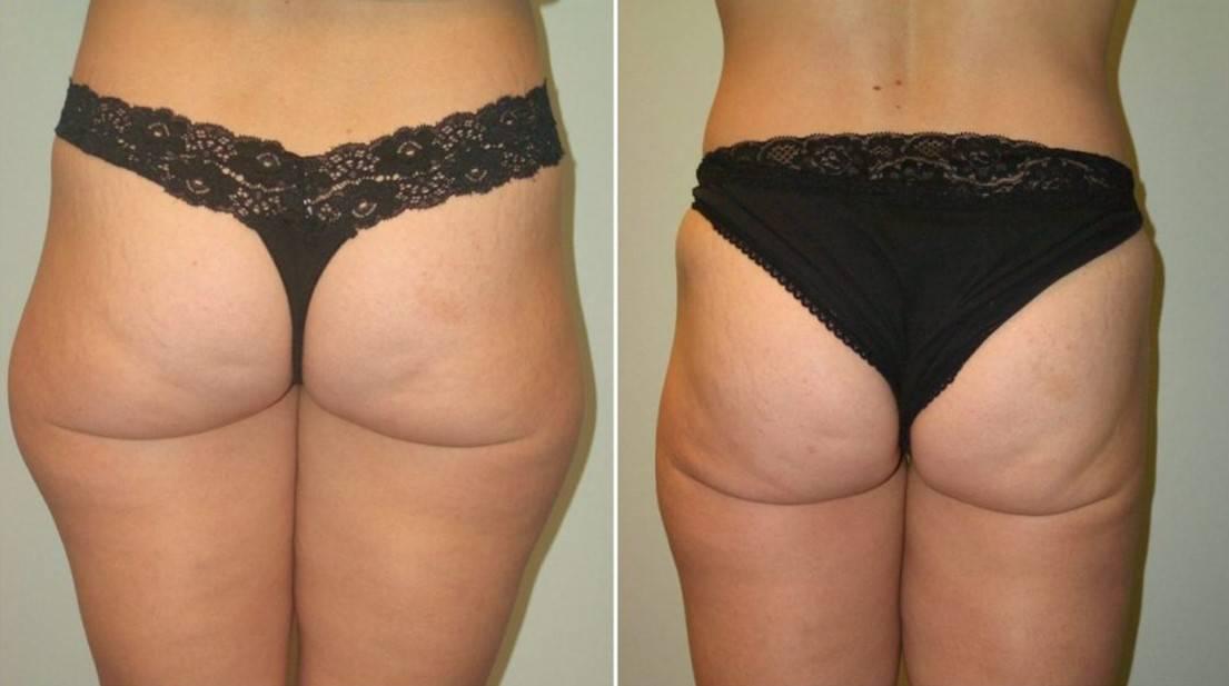липоскульптуринг тела 5