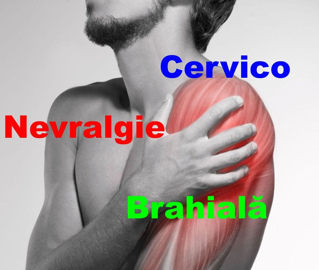 Nevralgie Cervico Brahiala
