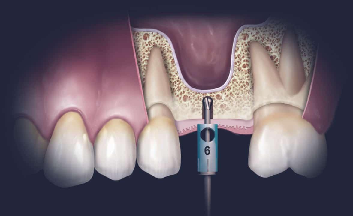 Dentus perfectus - sinus lift