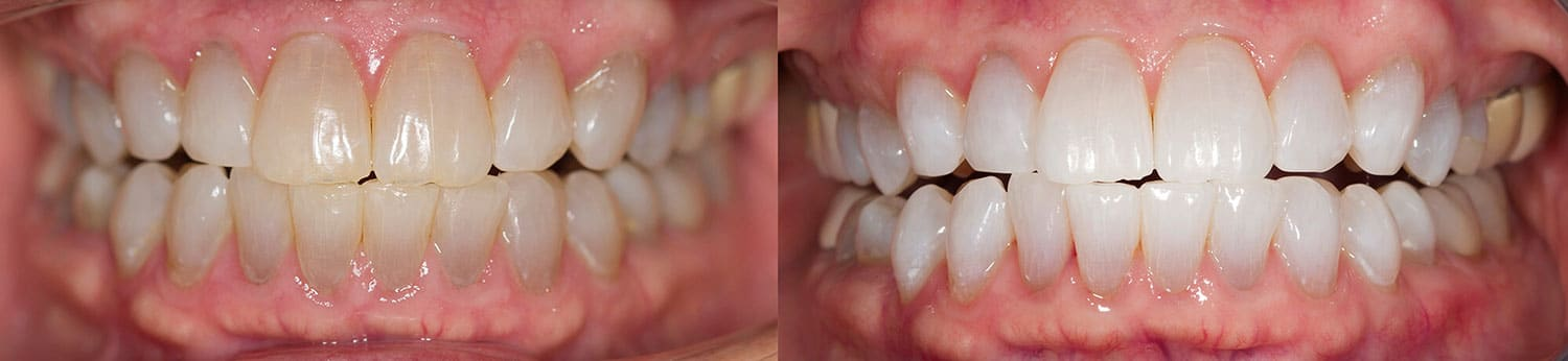 6 Treatments with Opalescence Boost + 6 months with Opalescence PF 20%
