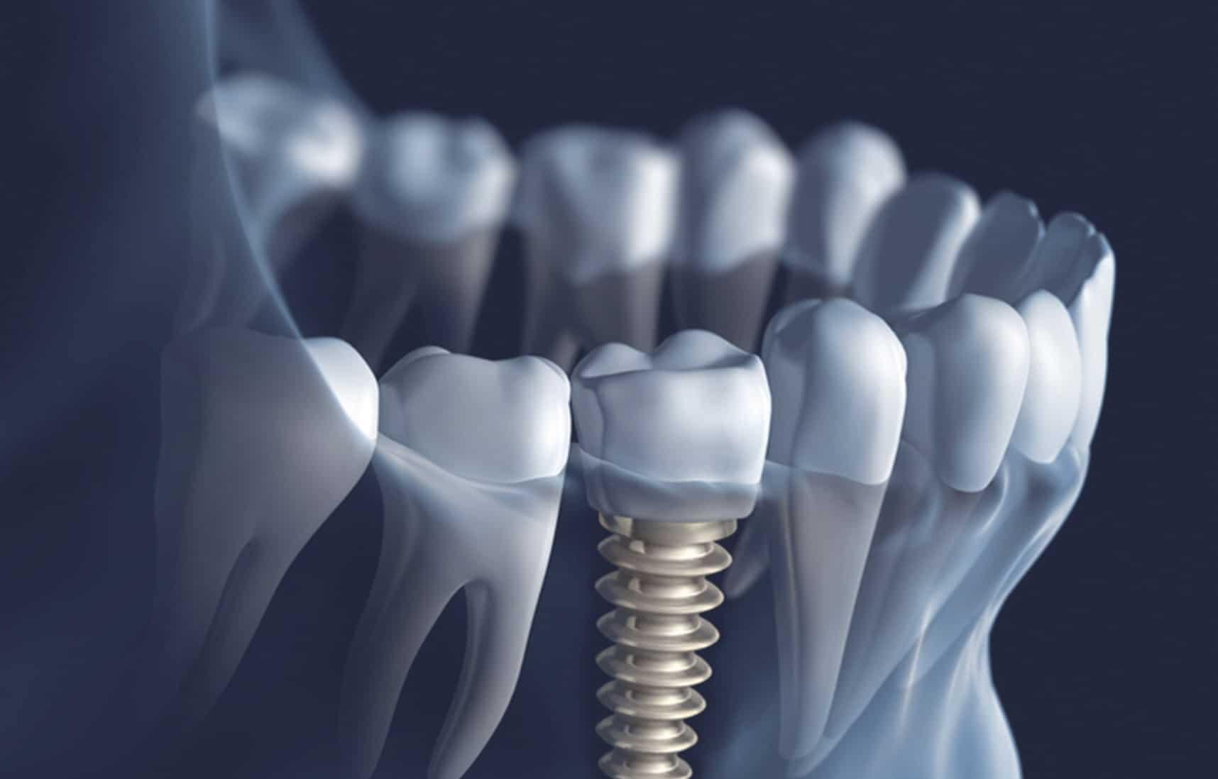Dentus perfectus - implantologija - što su zubni implantati?