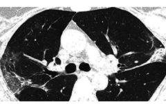 lung_xray_coronavirus