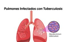 lungs_infected