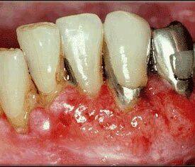 what-does-dip-teeth