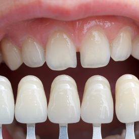 mouth with dental veneers