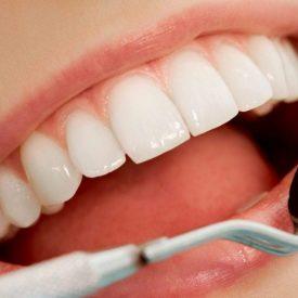 Dental Crown check up