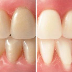 dental whitening kit results