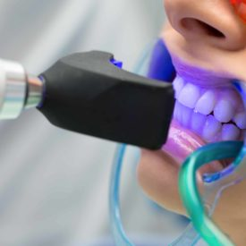 whitening teeth with ultraviolet light