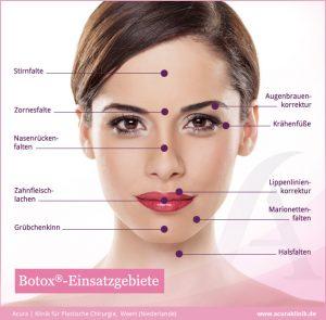 Infografik Einsatzgebiete von Botox zur Faltenbehandlung im Gesicht