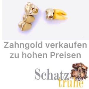 Zahngold Ankauf Goldzähne kaufen wir an Bargeld sofort!